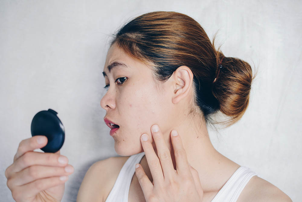 Acne Treatments in Singapore That Work: Tried, Tested, and Approved Skin