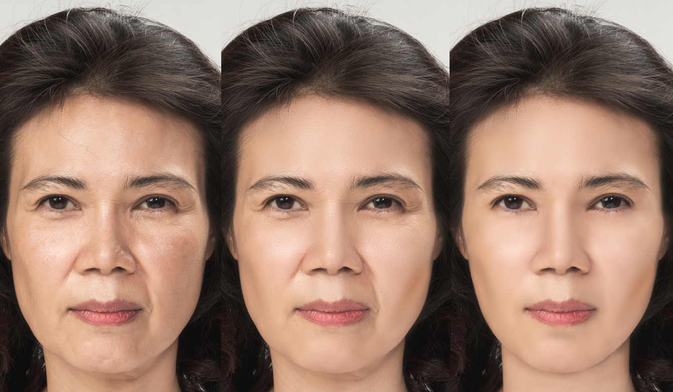 Bring Back Your Youthful Look by Combating One of the Most Noticeable Signs of Aging Skin