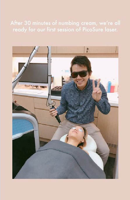 beforePicoSure laser