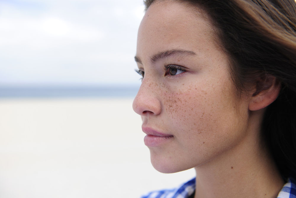 Does freckle removal have side-effects? A Singapore doctor explains Skin