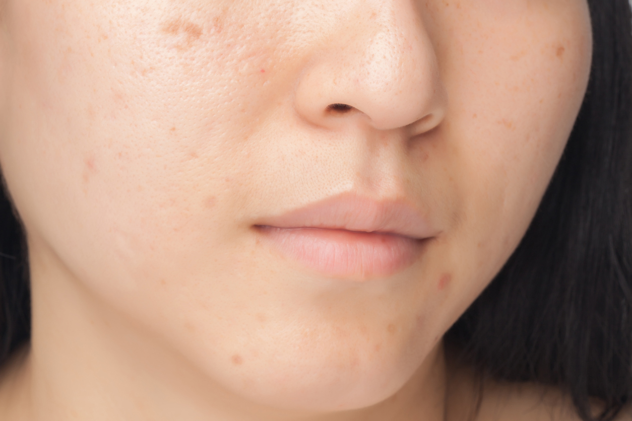 Best Pore Minimizer in Singapore According to Doctors Face