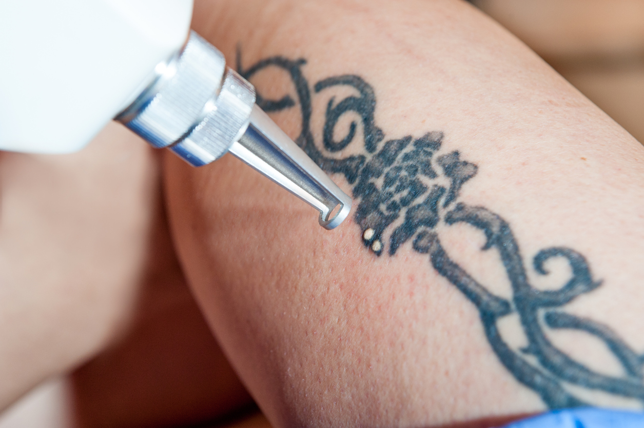 Doctor Explains Laser Tattoo Removal in Singapore Works Skin