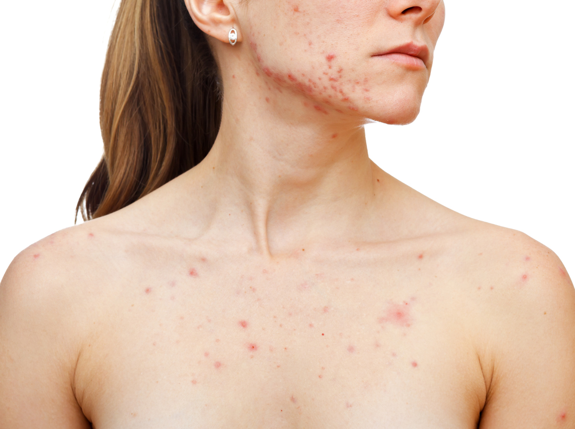 How To Get Rid Of Acne Scars - A Singapore Doctor's Opinion Skin