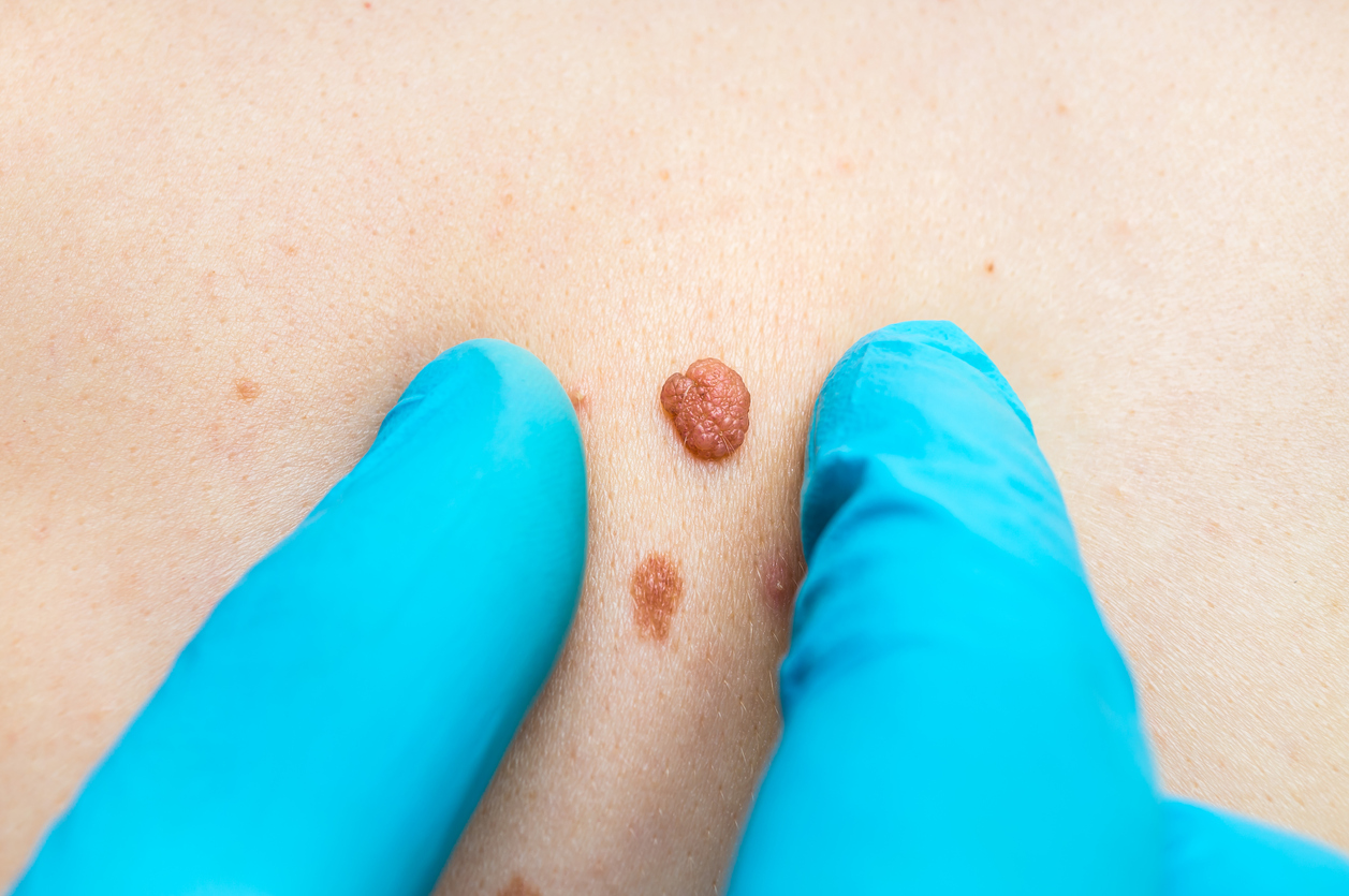 Mole Removal in Singapore Can Be Dangerous - Aesthetic Doctor Reveals Skin