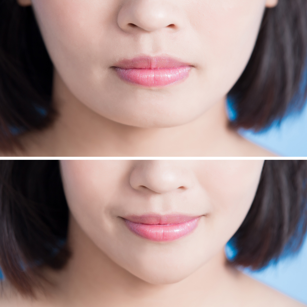 Ways To Get Ultra V Shape Face Explained by Singapore Doctor Face