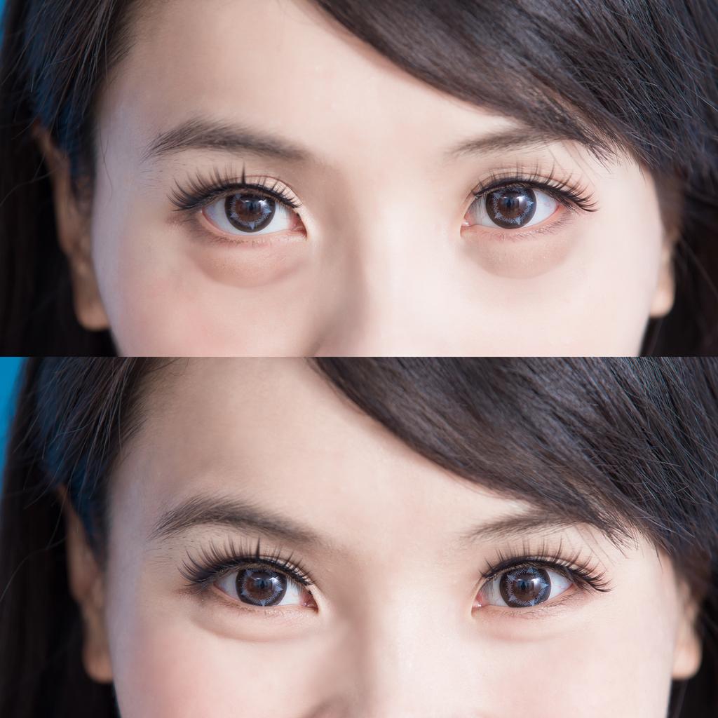 Eye Bag Removal Price & Dangers - By Singaporean Plastic Surgeon Eyes