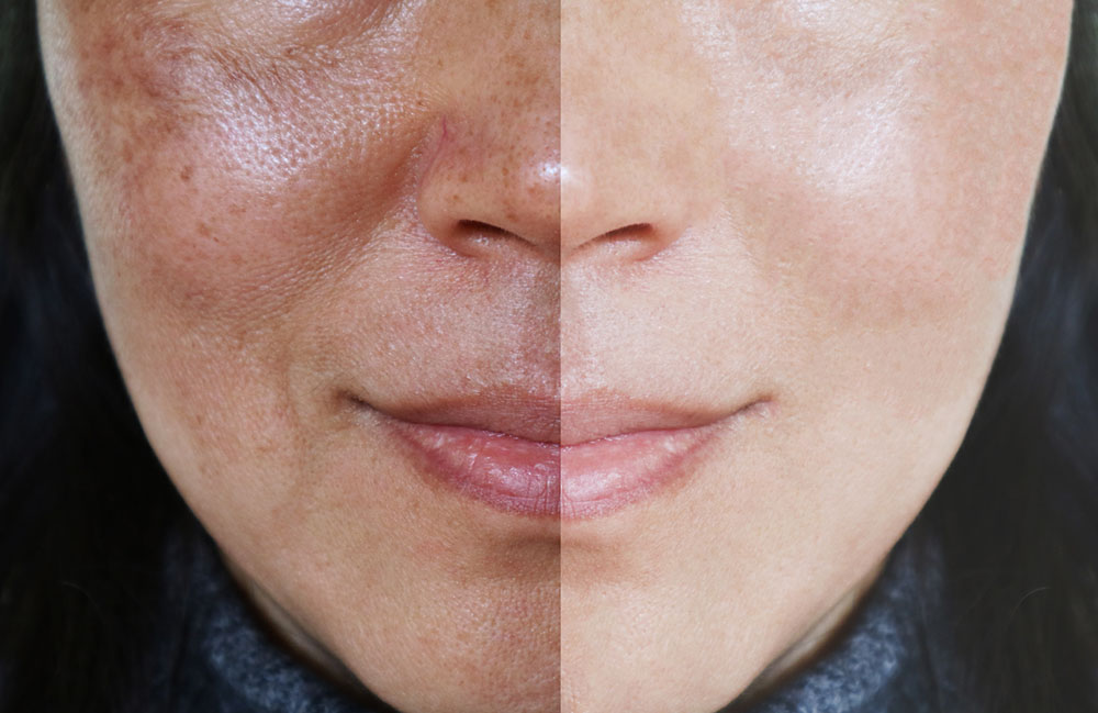 Melasma before-after treatment