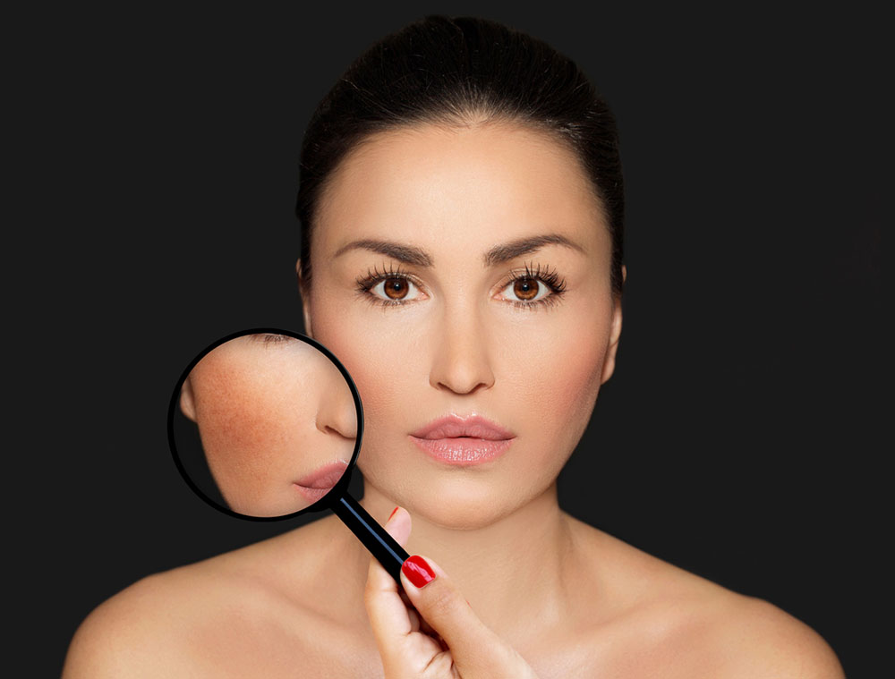 Afraid to leave home because of discolored skin? Dr. Tan explains Melasma treatment  Skin
