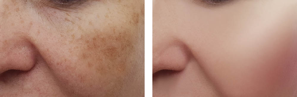 Top 4 Reasons Why Some Laser Pigmentation Removal Treatments Don't Work Skin