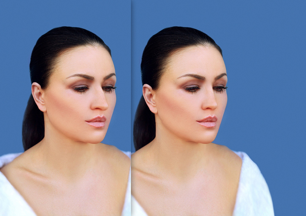 Rhinoplasty before-after