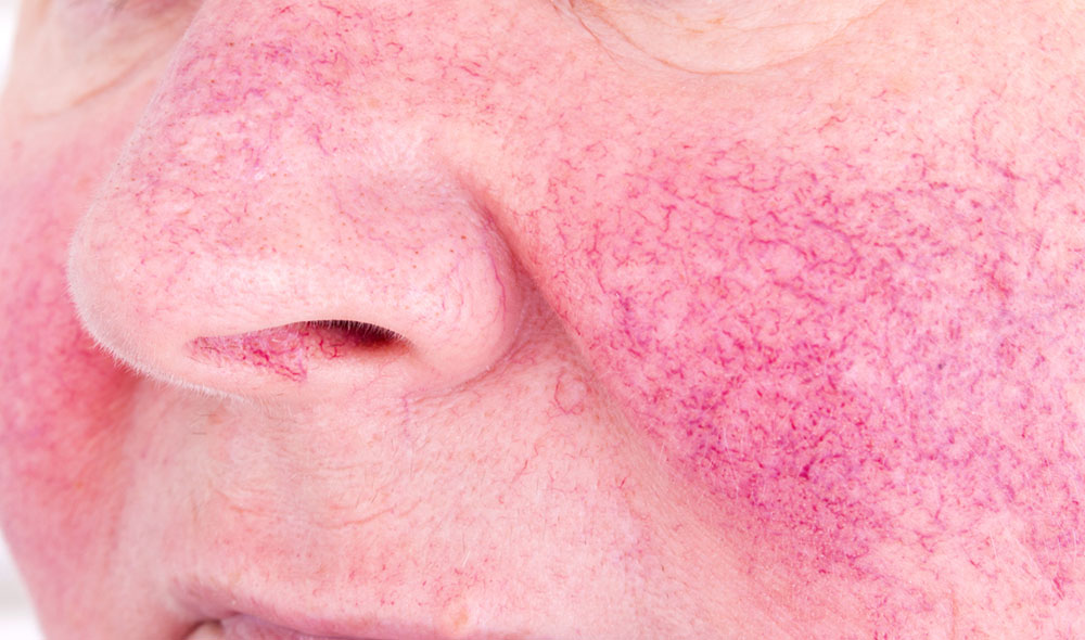 Looking for a painless Rosacea treatment? A doctor's advice on what to do Face