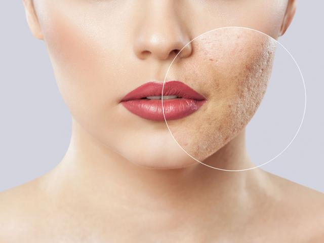 Best choices for scar removal in Singapore - A doctor's perspective Face