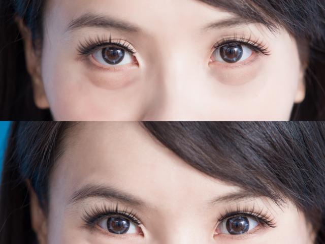 Eye Bag Removal Price & Dangers - By Singaporean Plastic Surgeon Eyes