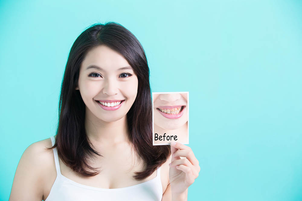 A Tooth Doctor's Journey to Whiter Teeth Smile
