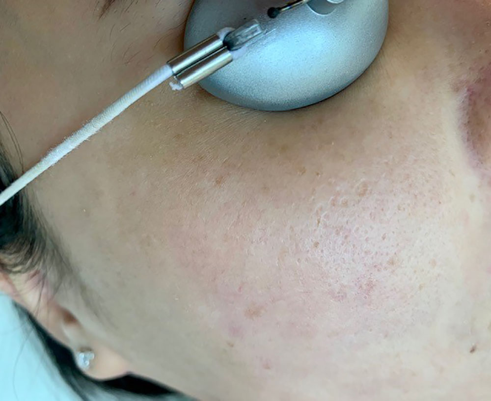 troubled pore areas